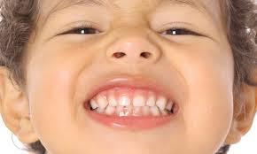 La importancia de mantener sanos los dientes de leche