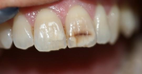 La boca del celíaco